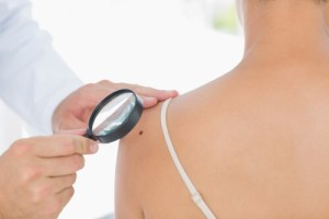 Woman has her moles checked by a professional - Mole checking is essential says Sue Ibrahim the nurse consultant in dermatology from Elan Medical Clinics in central London and Essex