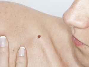 Mole Removal in Essex