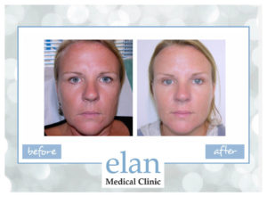 This woman was treated with Restylane skin fillers by Sue Ibrahim. Photos taken 3 weeks apart