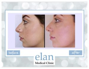Rhinoplasty in Essex