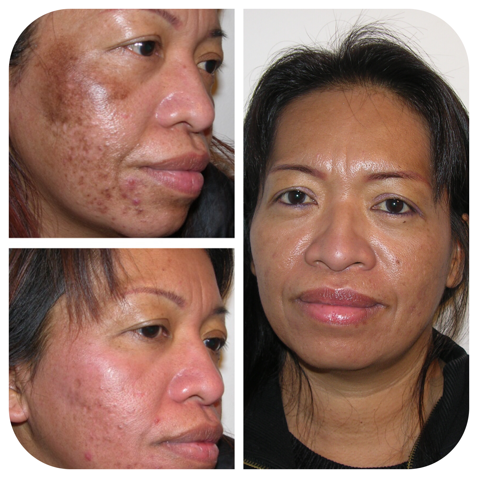 Skin discoloration Essex | Melasma treatment London