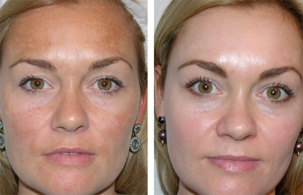 Skin discoloration Essex & London | Skin pigmentation Essex