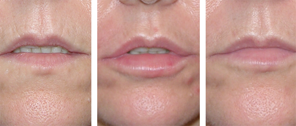 Natural looking lips with our dermal filler injections - Lip injections London