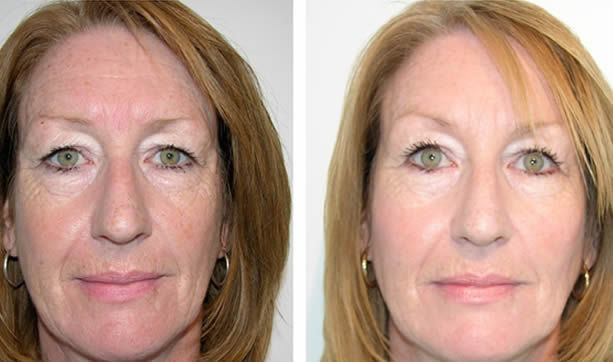 Dermal fillers Essex